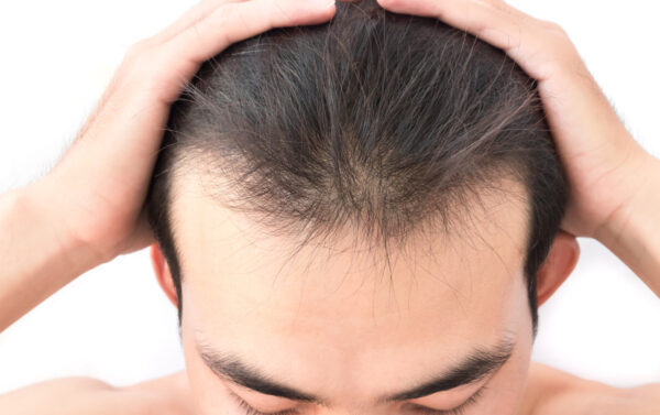 Laser Hair Growth Treatment - What to Expect